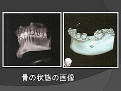 歯周外科手術前検査