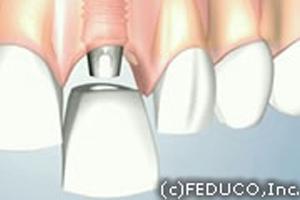 被せる歯の作成