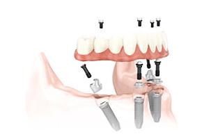 最終的な歯の取り付け